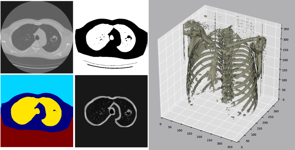 DICOM Processing and Segmentation in Python – Radiology Data Quest